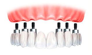 opciones-para-recuperar-mis-dientes5